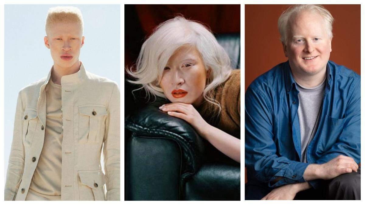 Сильные несмотря ни на что: знаменитости, которые живут с альбинизмом