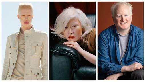 Сильные несмотря ни на что: известные люди, которые живут с альбинизмом
